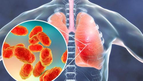 Мы спросили врача-инфекциониста, стало ли больше больных пневмонией по сравнению с предыдущими годами