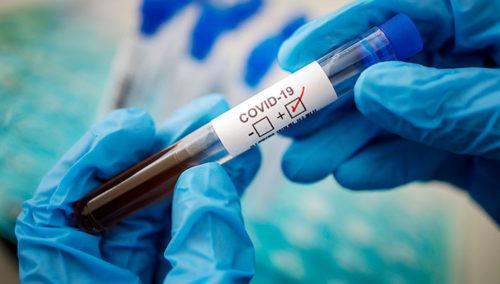 Глубокое коронавирус